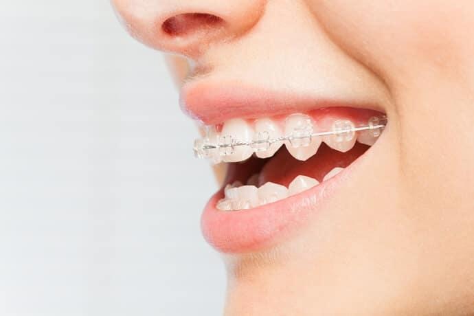 Aparelho Odontológico: quando devo usar e quais modelos