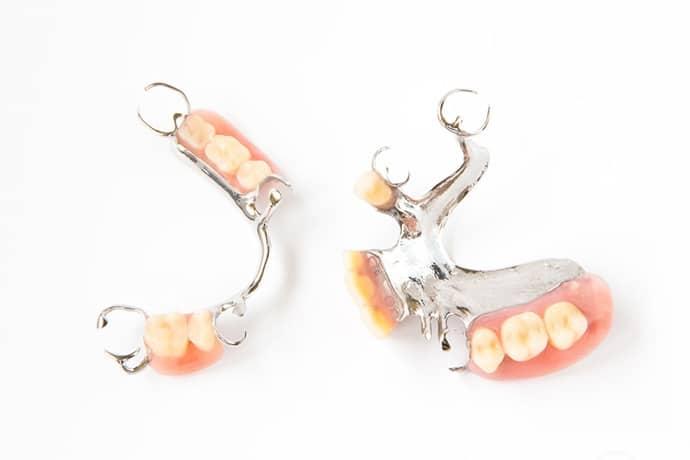 Prótese dentária: tudo que você precisa saber para ter um sorriso bonito