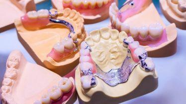 Planos Odontológicos com coberturas para ponte dentária móvel