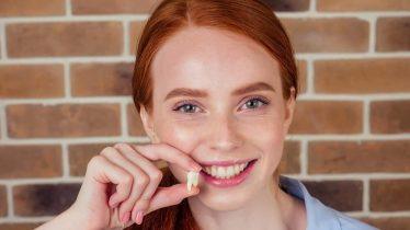 Extração de dentes: Saiba quais são os cuidados necessários